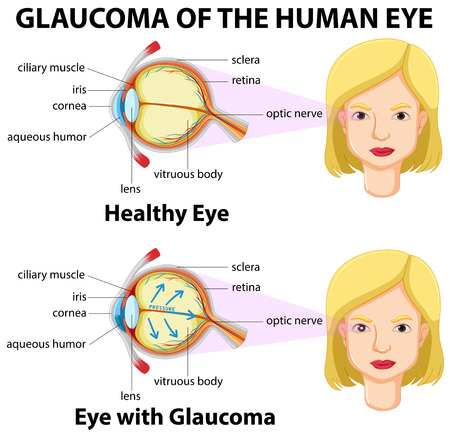 Parts of human eye with name illustration royalty free cliparts 59309506 glaucoma of the human eye illustration ccuart Images