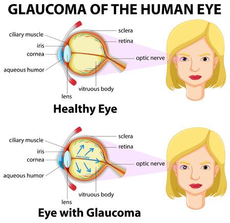 optic nerves: Glaucoma of the human eye illustration Illustration