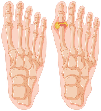 gout: Diagram of gout in human toe illustration