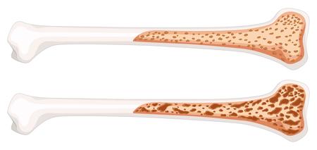 Osteoporosis in human bone illustration
