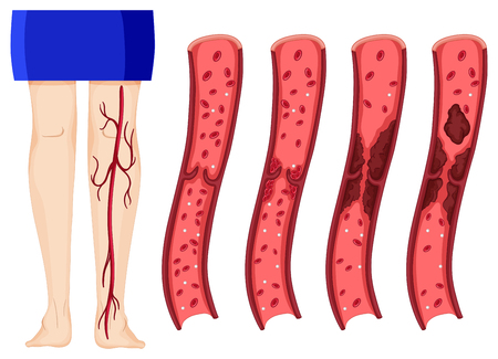 Blood clot in human legs illustration (deep vein thombosis)