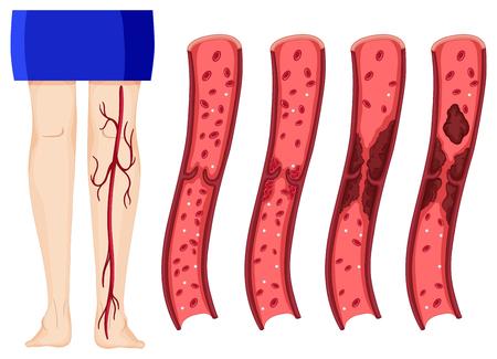 Blood clot in human legs illustration (deep vein thombosis)