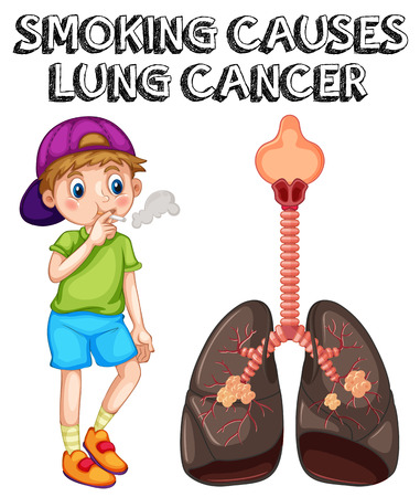 smoking cigarette: Boy smoking cigarette and lung cancer illustration