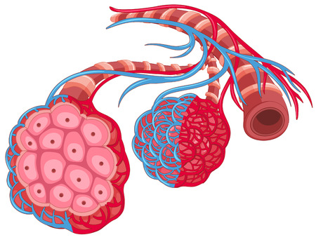 lung disease: Human lung with disease illustration Illustration