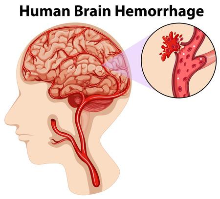 hemorragia: Diagram of human brain hemorrhage illustration Vectores