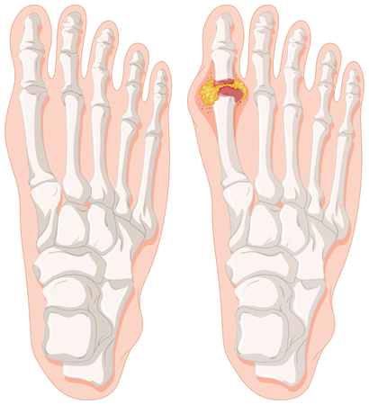 cancer foot: Gout toe in human feet illustration