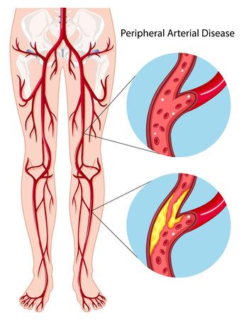 末梢動脈疾患の図  イラスト・ベクター素材