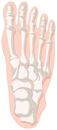 cancer foot: Bone x-ray for gout toe illustration Illustration