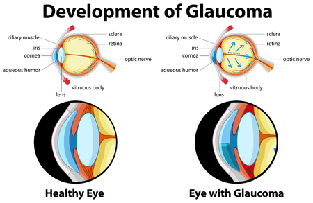 Diagram showing development of glaucoma illustration 矢量图像