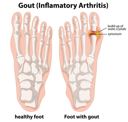 Diagram explanation of Gout in human foot illustration Ilustração