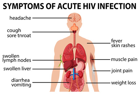 infection: Chart of symtoms of acute HIV infection illustration
