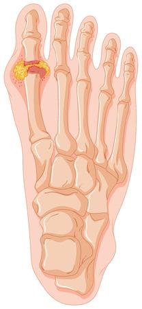 Diagram showing gout toe illustration Vector Illustration