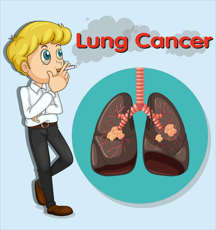 lung cancer: Man smoking and lung cancer illustration