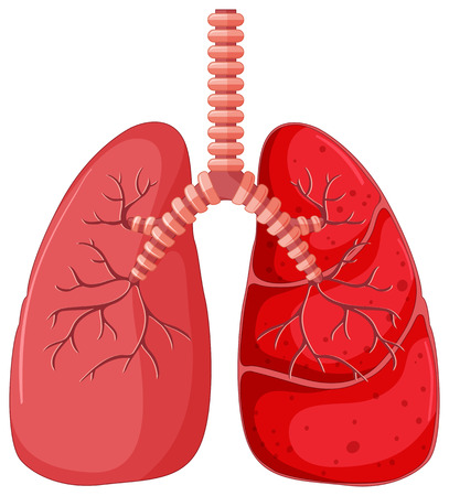 Pneumonia In Human Lungs Illustration Royalty Free Cliparts Vectors