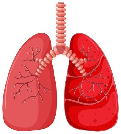 respiration: Lung diagram with pneumonia illustration