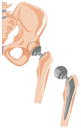 hip replacement: Diagram of hip bone treatment illustration