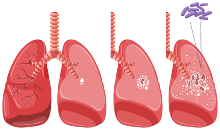 tuberculosis: Tuberculosis in human lungs illustration