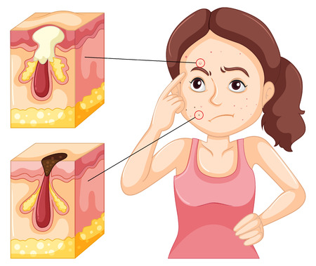 zit: Woman having problem with pimples illustration