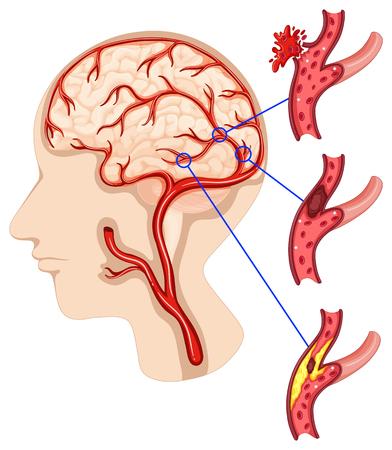 人間の脳の図にがん  イラスト・ベクター素材