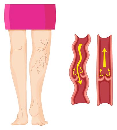 人間の脚の図に下肢静脈瘤 写真素材 - 59311161