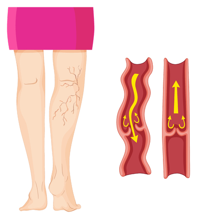varicose veins: Varicose veins in human leg   illustration