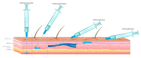 injection: Diagram showing injection with syringe illustration