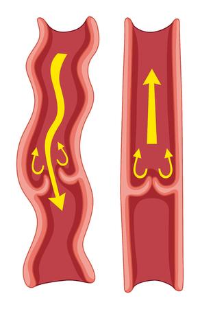 Varicose veins in human body illustration Illustration