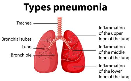 pneumonia: Diagram showing types pneumonia illustration
