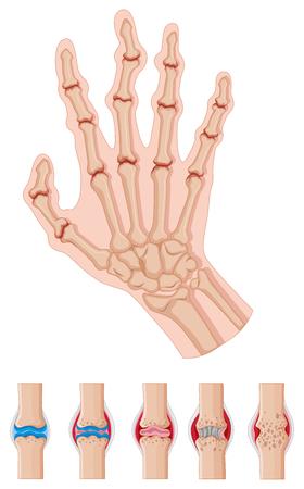 rheumatoid: Rheumatoid arthritis in human hands illustration
