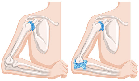 elbow: Close up diagram of human elbow joints illustration Illustration