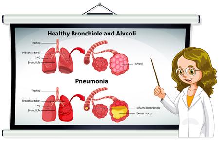 alveolos pulmonares: Médico explicando bronquiolo sana e ilustración alvéolos