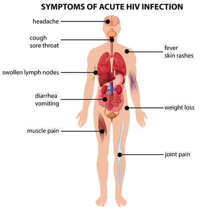 Diagrama que muestra síntomas de infección aguda por HIV ilustración