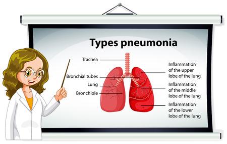 pneumonia: Doctor explaining types of pneumonia illustration