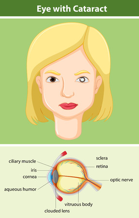 blind woman: Diagram showing eye with cataract illustration Illustration