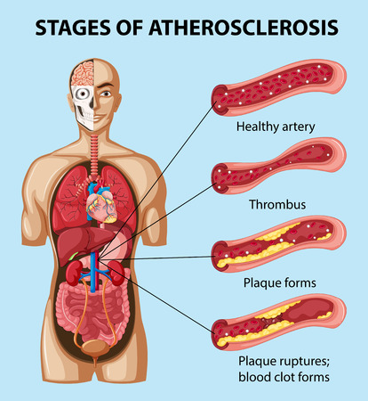 atherosclerosis: Diagram showing stages of atherosclerosis in human illustration Illustration