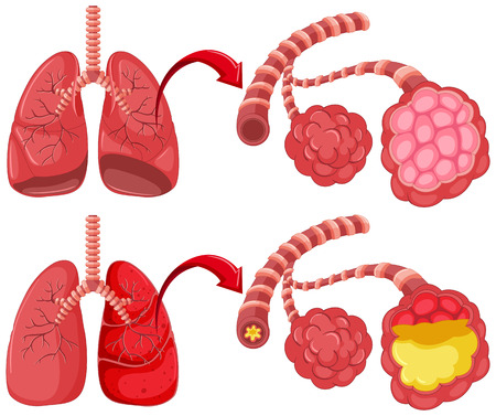 Human lungs with pneumonia illustration