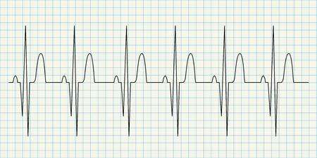 medical drawing: Electrocard diagram on grid paper illustration
