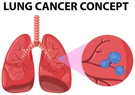 lung cancer: Diagram of lung cancer concept illustration Illustration