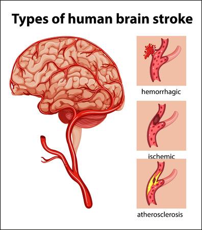 Typen des menschlichen Gehirns Schlaganfall Illustration Illustration