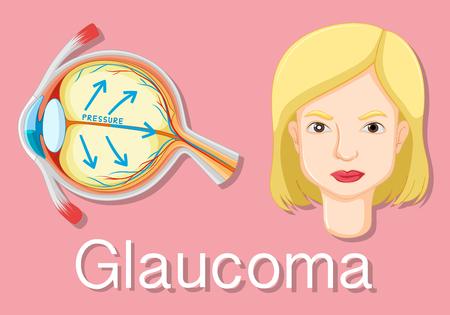 glaucoma: Diagram showing eyes with glaucoma illustration