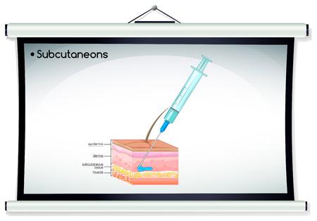 piel humana: Subcutaneons inyección en la ilustración de la piel humana Vectores