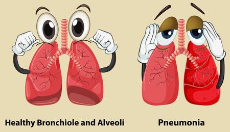 Schematische weergave van een gezonde en longontsteking longen illustratie