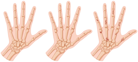 fracture: Human hands with bone fracture illustration