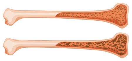 osteoporosis: Osteoporosis in human bone illustration