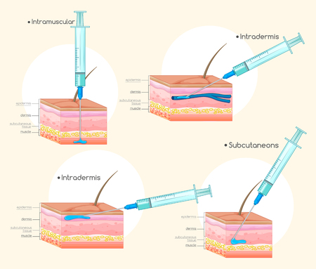 injecting: Different types of injections illustration Illustration