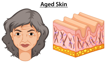 clipart wrinkles: Diagram showing woman with aged skin  illustration