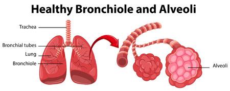 alveolos: Diagrama que muestra los bronquiolos sana e ilustración alvéolos