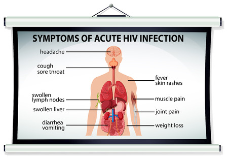 acute: Chart showing symptoms of acute HIV infection illustration
