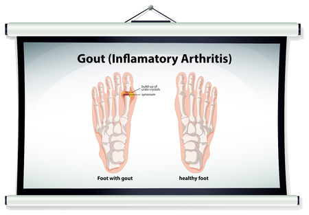 gout: Chart showing gout in human illustration Illustration