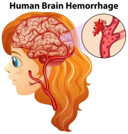 hemorragia: Diagram showing human brain hemorrhage illustration